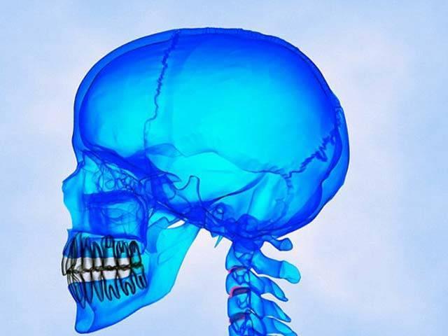 اسٹیم سیل میں موجود ایکسن ٹو جین کے بارے میں انکشاف کیا گیا ہے کہ وہ انسانی سر کے اہم حصوں کو دوبارہ اگا سکتا ہے۔ فوٹو؛ فائل