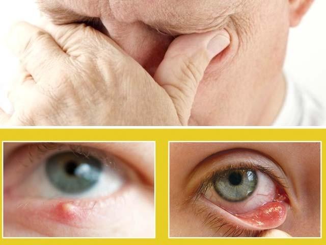 اکثر لوگوں کی آنکھوں میں دانے نکل آتے ہیں۔ انہیںچشم گوہانجنی بھی کہا جاتا ہے۔ فوٹو : فائل