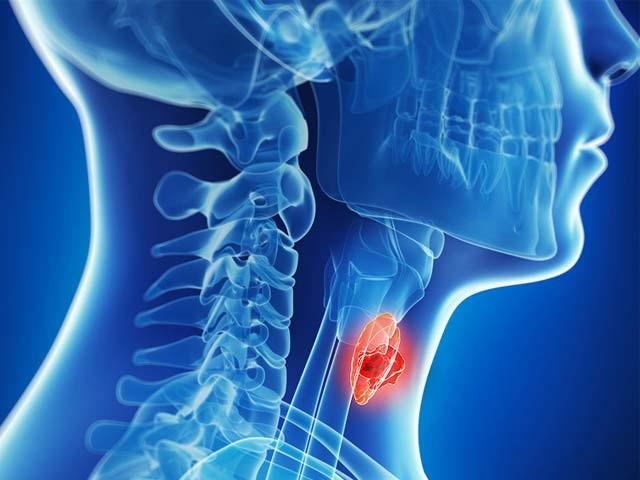 آخری درجے کے مریض نیوولیومیب دوا سے زندگی کا دورانیہ بڑھاسکتے ہیں جو اس سے قبل ممکن نہ تھا۔ فوٹو؛ فائل