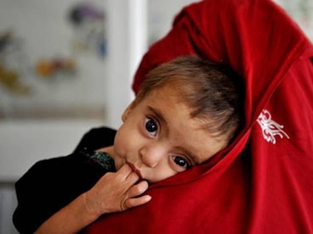 سندھ میں 40 فیصد بچے اپنی عمر کے لحاظ سے کم وزنی ہیں اور 73 فیصد خون یا فولاد کی کمی کے شکار ہیں۔ فوٹو: فائل