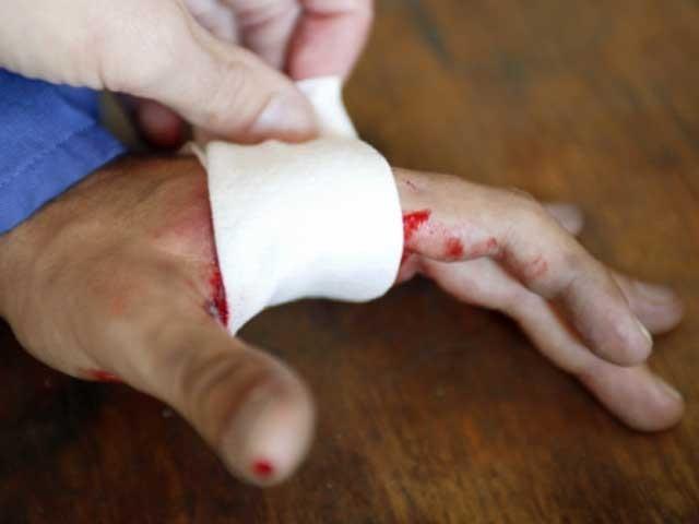 خون اور وٹامن سی کے آمیزے سے ایک سال میں 10 میں سے 9 مریضوں ذیابیطس کے زخم مندمل ہوگئے۔ فوٹو؛ فائل