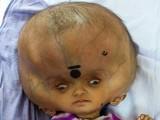 بچہ 7 ماہ کی عمر میں ایسے مرض کا شکار ہوا جس سے اس کے سر میں ساڑھے پانچ لیٹر تک پانی بھر چکا تھا۔ فوٹو: بشکریہ ڈیلی میل