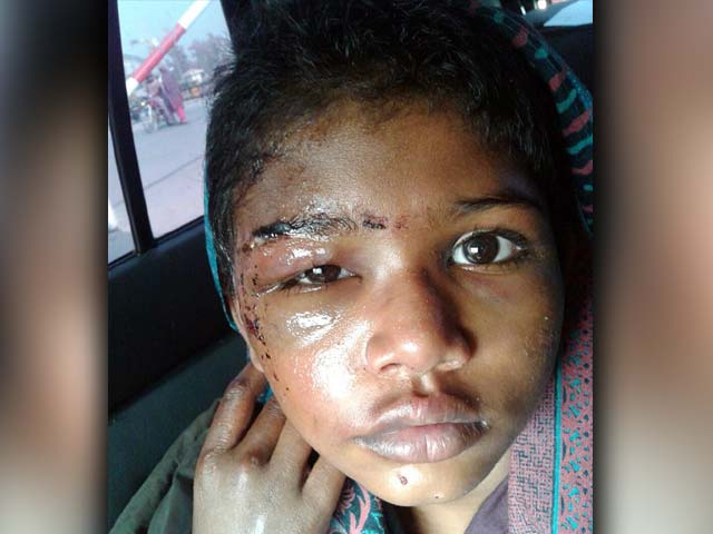 کمسن طیبہ کی دائیں آنکھ اور کنپٹی پر بھی تشدد کے گہرے زخم موجود ہیں، میڈیکل رپورٹ۔ فوٹو: فائل