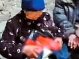 خاتون نے پیٹ سے باہر لٹکتی انتڑیوں کو سنبھالنے کے لیے ان پر پلاسٹک کا لفافہ چڑھادیا۔ فوٹو: نیٹ