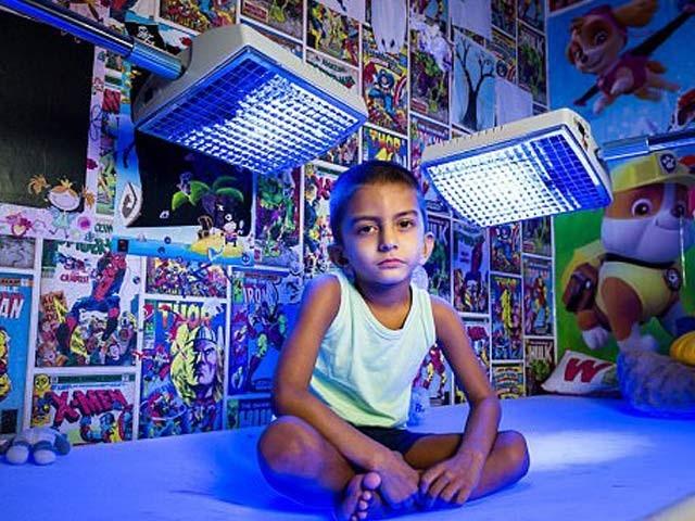 بچے کو جگر کا خاص مرض لاحق ہے جس کیلیے اسے 20 گھنٹے تک خاص نیلی روشنی میں رکھا جاتا ہے، فوٹو؛ بشکریہ ڈیلی میل