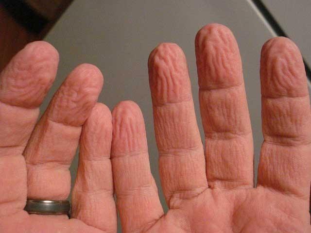 زیادہ دیر پانی میں رکھنے کی وجہ سے انگلیوں سلوٹیں پڑنا دراصل ہمارے لیے قدرت کا ایک انمول حفاظتی تحفہ ہے۔ (فوٹو: فائل)