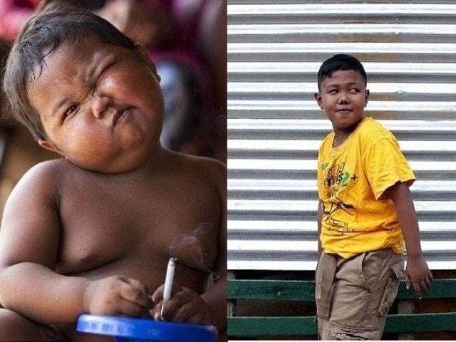 علدی کو 2 برس کی عمر میں یہ بری لت لگ گئی تھی۔ فوٹو: بشکریہ میل آئن لائن