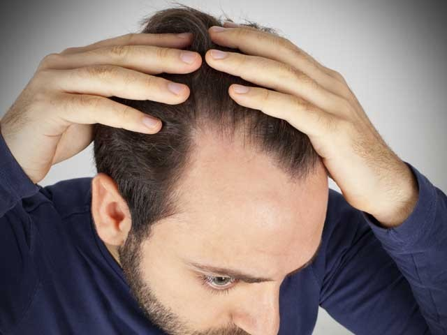 یہ بھی حقیقت ہے کہ بالوں کی جتنی دیکھ بھال کی جائے وہ ٹوٹتے بھی اسی رفتار سے ہیں؛فوٹوفائل