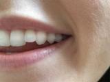 اگر یہ طریقہ طبی آزمائشوں میں کامیاب رہا تو آنے والے چند برسوں میں مصنوعی دانت اور بتیسیاں بنانے والوں کا کاروبار ٹھپ ہوجائے گا۔ (فوٹو: فائل)