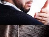 عام طور پر خشکی جنم کی وجہ بالوں کی صفائی کا زیادہ خیال نہ رکھنا یا جلدی مسائل ہیں۔ فوٹو : فائل