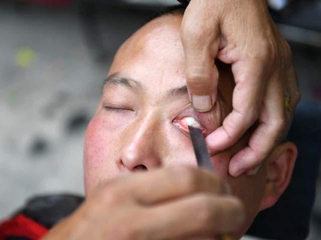 چینی حجام ژیونگ گاؤوو گزشتہ 40 سال سے اپنے استرے سے لوگوں کی آنکھیں صاف کررہے ہیں۔ فوٹو: بشکریہ ڈیلی مرر
