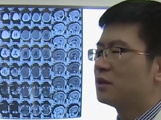 ڈاکٹر ینگ منگ نے آپریشن کرکے مریض کے دماغ سے  کیچوے کے 30 انڈے نکال لیے۔ فوٹو : انٹرنیٹ