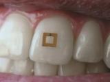 دانتوں پر نصب سنسرز غذائی اجزاء کی معلومات جمع کرنے کی صلاحیت رکھتے ہیں۔ فوٹو : سائنس ڈیلی