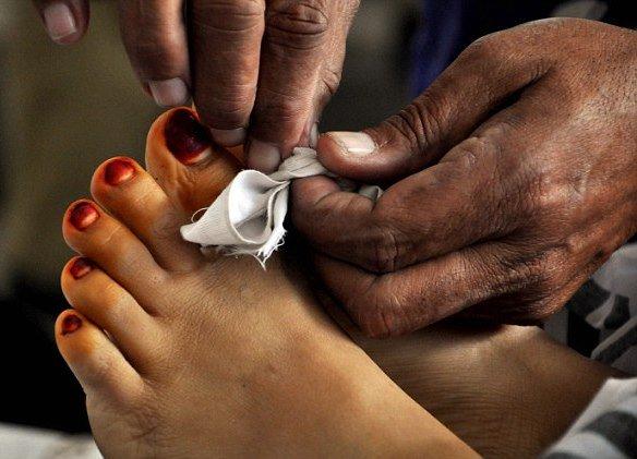 اورنگی ٹاؤن میں بڑے بھائی نے بھائی اور بھابھی کو تیز دھار آلے کے وار سے زخمی کردیا۔فوٹو:فائل