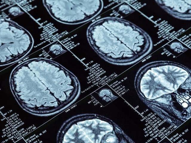 سائنس دان نئی تحقیق کو دماغی امراض کی تشخیص اور علاج میں انقلاب قرار دے رہے ہیں۔ فوٹو : فائل