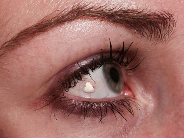 نیویارک کے ڈاکٹر ایمِل چائن آنکھوں کے اندر زیورات پہنانےکےماہر ہیں۔ فوٹو: فائل