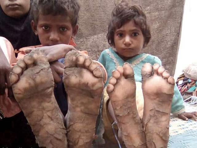 کراچی میں عارضی طور پر رہائش پذیر ان بچوں کی جلد تیزی سے ٹھوس پتھر میں بدل رہی ہے (فوٹو: ڈیلی میل)