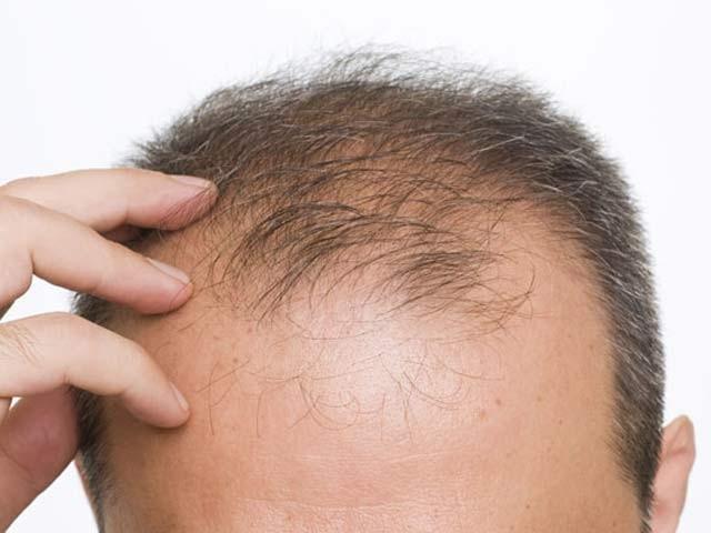 مانچسٹر یونیورسٹی کے ماہرین نے کہا ہے کہ صندل سونگھنے سے سر پر نئے بال اگ سکتے ہیں (فوٹو: فائل)