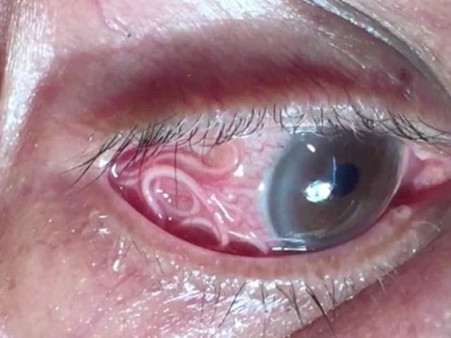 بھارتی شہری کی آنکھ سے 15 سینٹی میٹر طویل طفیلی کیڑا زندہ حالت میں برآمد کرلیا گیا (فوٹو: دی مرر)