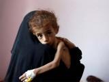 جنگ بندی نہ ہوئی تو 14 ملین افراد کے فاقہ کشی کے باعث ہلاک ہوجانے کا خدشہ ہے۔ فوٹو : فائل