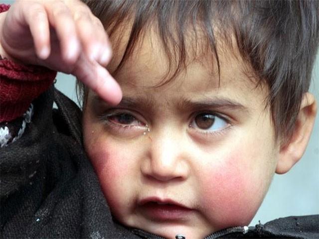 حبا پیلٹ گن سے متاثرہ کم عمر ترین  بچی ہے (فوٹو: الجزیرہ)