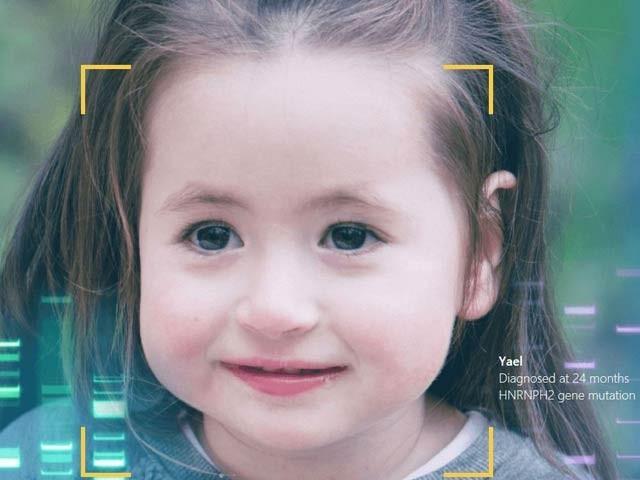 یہ سافٹ ویئر صرف چہرہ دیکھ کر نایاب جینیاتی امراض کی شناخت اور پیشگوئی کرسکتا ہے (فوٹو: بشکریہ ایف ڈی این اے)