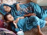 شہید بے نظیرآباد (نوابشاہ) میں ایک ہی خاندان کے 16 بچے نیورومسکیولر ڈیزیز کے شکار ہیں۔ فوٹو: ایکسپریس