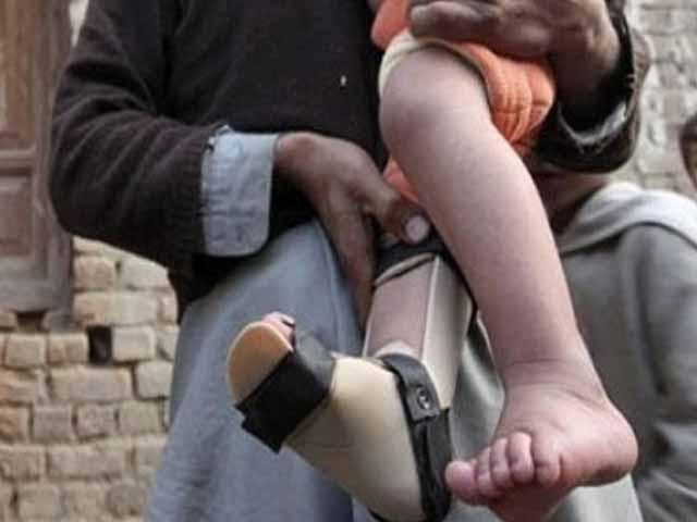 محکمہ صحت کراچی نے بچی میں پولیو وائرس کی تصدیق کردی ہے. فوٹو: فائل