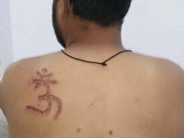 ہندو مذہب قبول کرنے سے انکار پر مسلمان قیدی کی پشت پر دیوتا کا نام داغ دیا گیا فوٹو : ٹویٹر