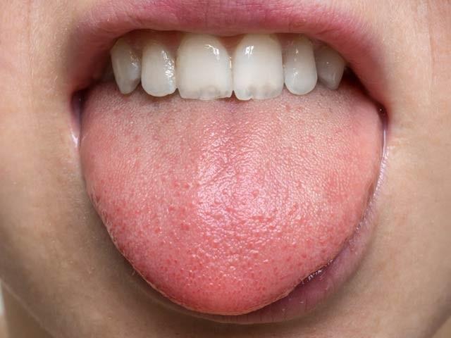 ماہرین نے انسانی زبان پر ذائقہ بھانپنے والے عین وہی ریسپٹرز دریافت کیے ہیں جو انسانی ناک میں بو سونگھنے کے کام آتے ہیں (فوٹو: فائل)