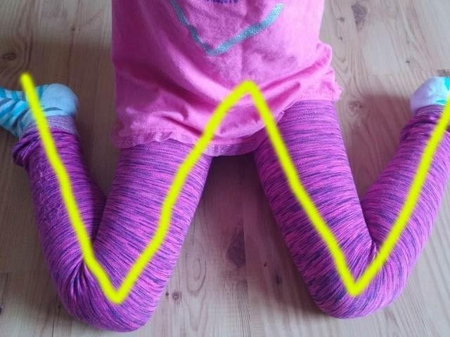 اگر آپ کا بچہ دونوں ٹانگوں کو موڑ کر ڈبلیو کی شکل میں بیٹھتا ہے تو اس کی یہ عادت بہت خطرناک ثابت ہوسکتی ہے۔ فوٹو: فائل