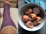 انڈے کا چھلکا کیلشیم کاربونیٹ پر مشتمل ہوتا ہے جبکہ ہماری ہڈیوں میں بھی کیلشیم ہی بکثرت پایا جاتا ہے۔ (فوٹو: فائل)