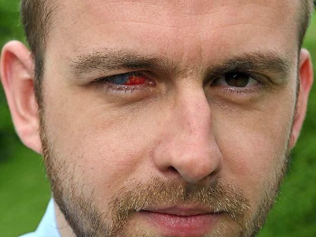 نوجوان کی دائیں آنکھ کی بینائی مکمل طور پر چلی گئی۔ فوٹو : شروپشائر اسٹار