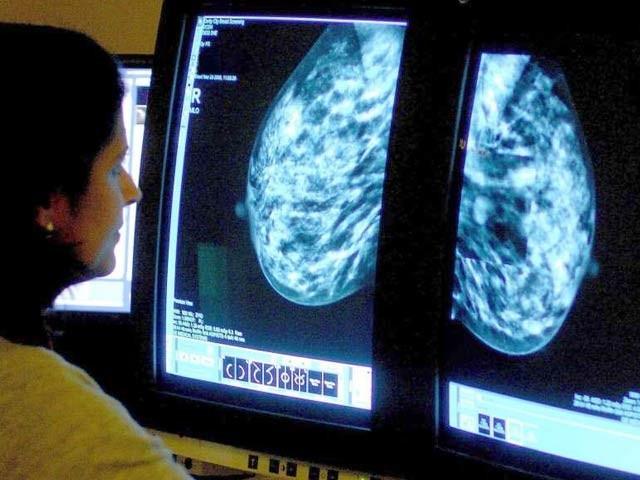 مصنوعی ذہانت کے ذریعے چھاتی کے سرطان کی مختلف اقسام کو کامیابی سے شناخت کیا جاسکتا ہے۔ فوٹو:فائل