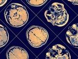 الزائیمر کا پہلا حملہ ہمارے دماغ کے اس حصے پر ہوتا ہے جو ہمیں دن میں جگائے رکھنے کا ذمہ دار ہے۔ (فوٹو: انٹرنیٹ)