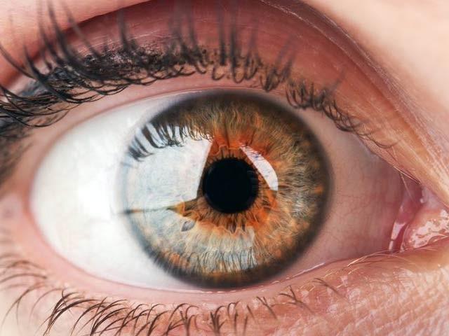 جاپان کے ماہرِ چشم نے آئی پی ایس اسٹیم سیل سے آنکھوں کا قرنیہ بنایا ہے اور ایک خاتون کی آنکھ میں پیوند کیا ہے جس کے انتہائی مثبت نتائج برآمد ہوئے ہیں۔ فوٹو: فائل