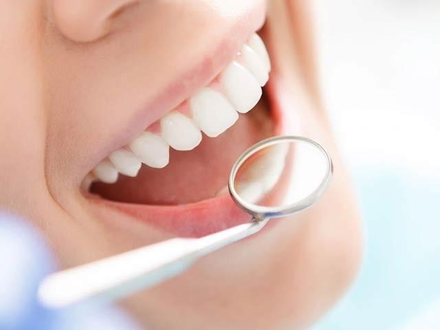 ڈاکٹروں نے مشورہ دیا ہے کہ اپنے منہ کی صحت کا خاص خیال رکھیں اور باقاعدگی سے اپنے ماہرِ دندان سے معائنہ کرائیں (فوٹو: فائل)