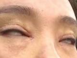 چینی خاتون نے آنکھوں کے پپوٹوں کا آپریشن کرایا جس کے منفی نتائج برآمد ہوئے (فوٹو: بشکریہ اوڈٹی سینٹرل)
