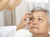 آنکھوں کے ریٹینا میں خون کی رگوں کو دیکھ کر بہت درستی کے ساتھ دل کے امراض کی پیش گوئی کی جاسکتی ہے (فوٹو: فائل)