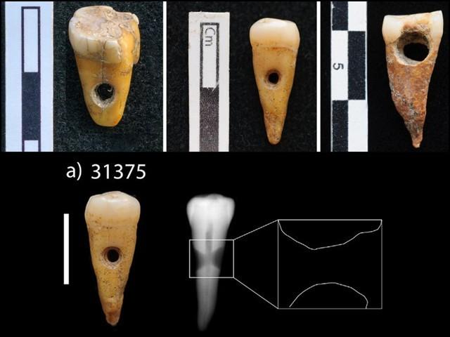 یہ تینوں انسانی دانت 8 ہزار سال سے زیادہ قدیم ہیں جنہیں کسی ہار کی طرح گلے میں پہنا جاتا تھا (فوٹو: ریسرچ جرنل)