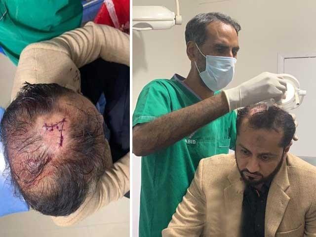حادثے کے بعد خواجہ عمران نذیر کو سی ایم ایچ اسپتال منتقل کردیا گیا جہاں انہیں طبی امداد دی گئی ۔ فوٹو :سوشل میڈیا