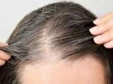فکری تناؤ سے بالوں کے قدرتی رنگ بننا بند ہوجاتے ہیں اور بال سفید ہوجاتے ہیں (فوٹو: فائل)