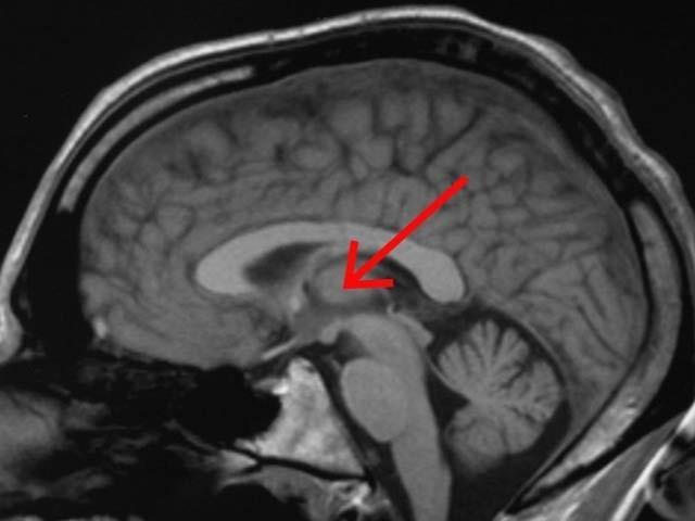 ماہرین نے دماغ میں ایک حصہ دریافت کیا ہے جو شعور سے وابستہ ہے اور لوگوں میں ہوش اور بے ہوشی کی وجہ بن سکتا ہے (فوٹو: یونیورسٹی آف وسکانسن)