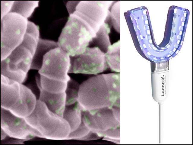 یہ نیا ماؤتھ واش روشنی کی مدد سے منہ میں موجود مضر جراثیم کو ہلاک کردیتا ہے لیکن مفید بیکٹیریا کو کوئی نقصان نہیں پہنچاتا (فوٹو: آلٹو یونیورسٹی)