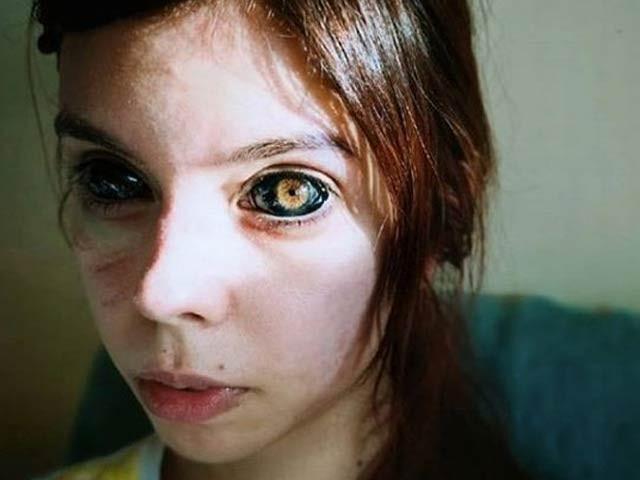 25 سالہ ماڈل الیگزینڈرا ساڈوسکا آنکھوں کو سیاہ کروانے کے عمل میں نابینا ہوچکی ہیں (فوٹو: ڈیلی میل)