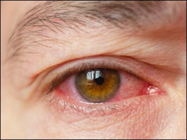 یہ وائرس ممکنہ طور پر آنکھوں سے بہنے والے آنسوؤں سے بھی پھیل سکتا ہے۔ (فوٹو: انٹرنیٹ)