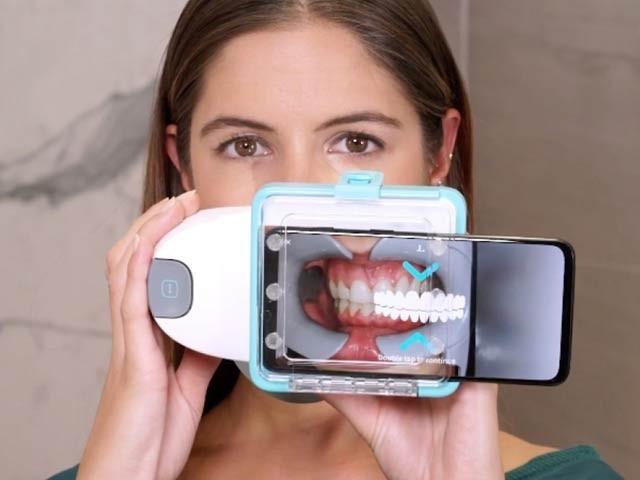 فرانسیسی کمپنی نے دانتوں کا آن لائن معائنہ کرنے والا ایک سادہ اور تیزرفتار نظام بنایا ہے۔ فوٹو: ڈینٹل مانیٹرنگ