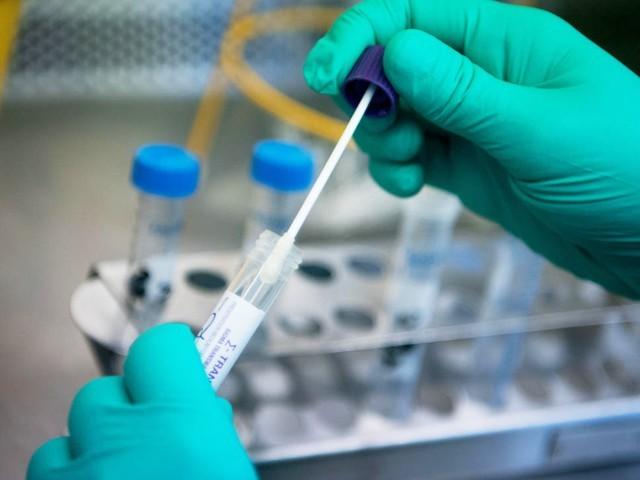 کورونا وائرس کے ٹیسٹ کروانے کے لیے مندرجہ ذیل نمبروں پر 24 گھنٹے رابطہ کیا جا سکتا ہے، سیکرٹری صحت بلوچستان۔ فوٹو: فائل
