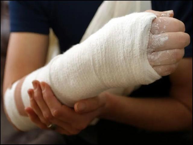 امید ہے کہ مستقبل میں یہی تکنیک ٹوٹی ہڈیاں جوڑنے کے علاوہ دوسرے زخموں کو جلد مندمل کرنے کے کام بھی آسکے گی۔ (فوٹو: انٹرنیٹ)