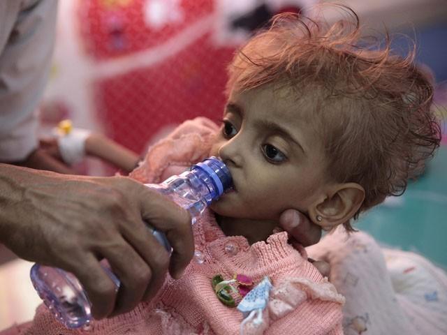 عالمی برادری یمن میں جنگ بندی کے لیے اقدامات کریں، سیکرٹری جنرل یو این (فوٹو : فائل)